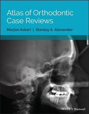 Atlas of Orthodontic Case Reviews