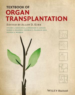 Textbook of Organ Transplantation Set PDF