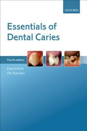 Essentials of Dental Caries: Edition 4