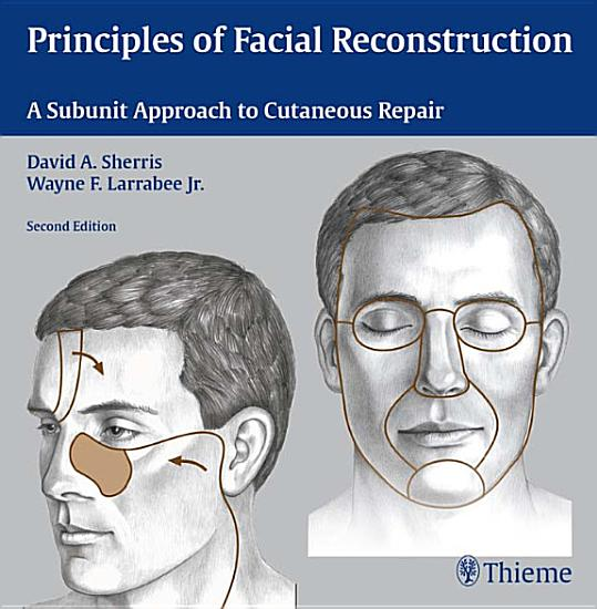 Principles of Facial Reconstruction PDF