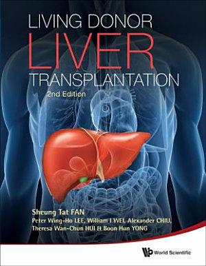Living Donor Liver Transplantation PDF