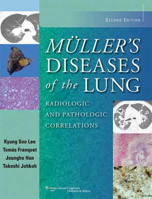Muller's Diseases of the Lung