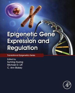 Epigenetic Gene Expression and Regulation