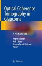 Optical Coherence Tomography in Glaucoma PDF