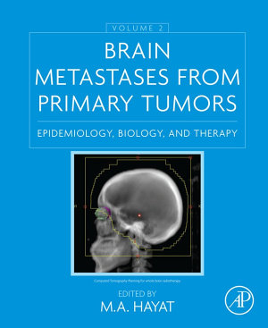 Brain Metastases from Primary Tumors  Volume 2 PDF