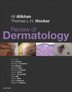 Review of Dermatology E Book