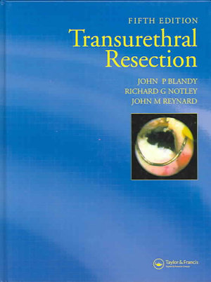 Transurethral Resection  Fifth Edition