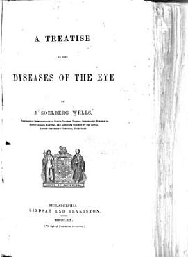 A Treatise on the Diseases of the Eye PDF