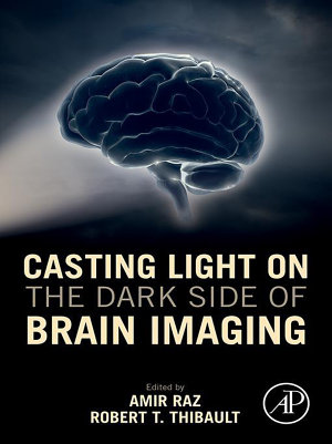Casting Light on the Dark Side of Brain Imaging PDF