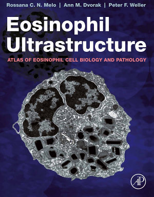 Eosinophil Ultrastructure