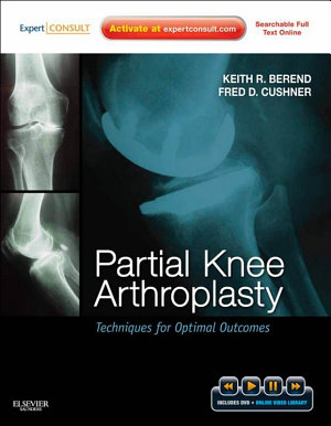 Partial Knee Arthroplasty E-Book