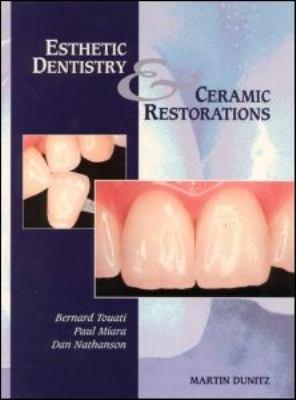 Esthetic Dentistry and Ceramic Restorations PDF