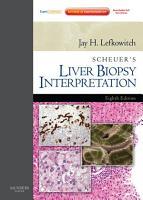 Scheuer s Liver Biopsy Interpretation E Book PDF