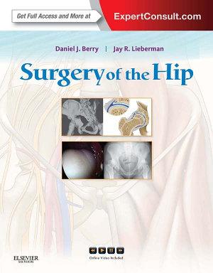 Surgery of the Hip E-Book