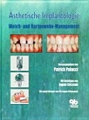 sthetische Implantologie PDF