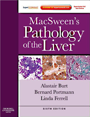 MacSween's Pathology of the Liver E-Book