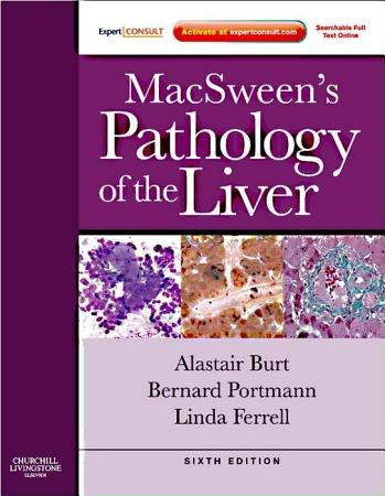 MacSween s Pathology of the Liver E Book PDF