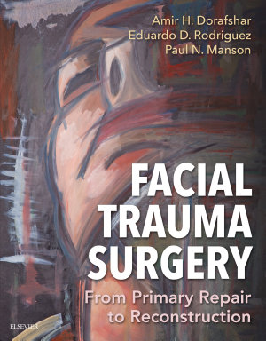 Facial Trauma Surgery E-Book