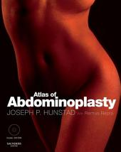 Atlas of Abdominoplasty E-Book