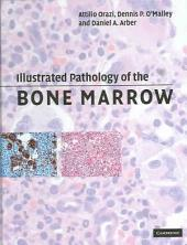 Illustrated Pathology of the Bone Marrow