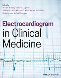 Electrocardiogram in Clinical Medicine PDF