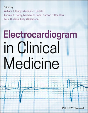 Electrocardiogram in Clinical Medicine PDF