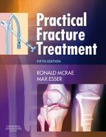 Practical Fracture Treatment PDF