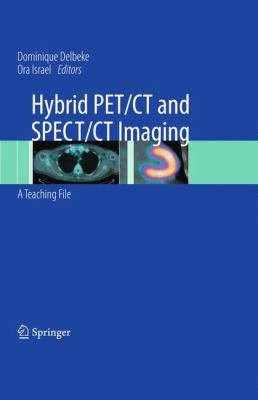 Hybrid PET CT and SPECT CT Imaging PDF