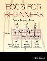 ECGs for Beginners PDF