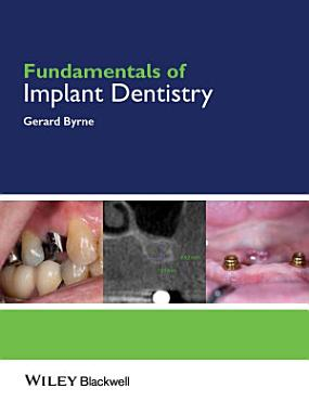 Fundamentals of Implant Dentistry PDF