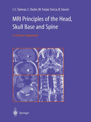 MRI Principles of the Head, Skull Base and Spine