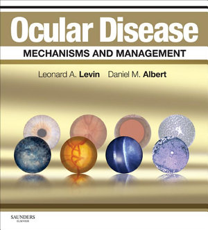 Ocular Disease: Mechanisms and Management E-Book
