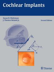 Cochlear Implants PDF
