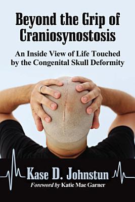 Beyond the Grip of Craniosynostosis