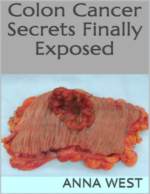 Colon Cancer Secrets Finally Exposed