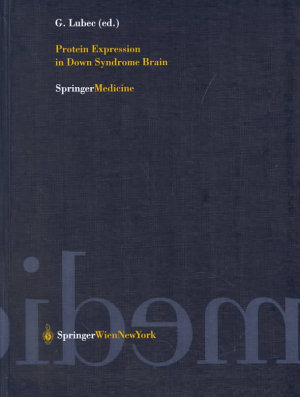 Protein Expression in Down Syndrome Brain