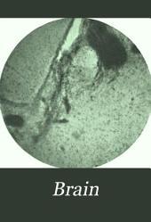 Brain: A Journal of Neurology
