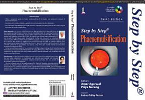 Step by Step Phacoemulsification PDF