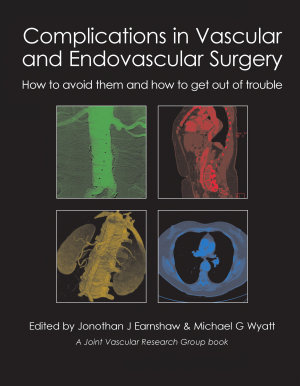 Complications in Vascular and Endovascular Surgery