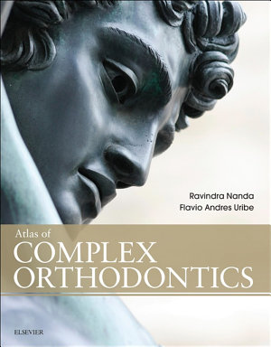 Atlas of Complex Orthodontics - E-Book
