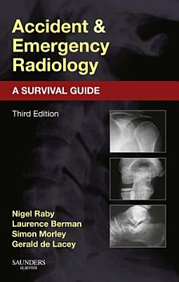 Accident and Emergency Radiology  A Survival Guide E Book PDF
