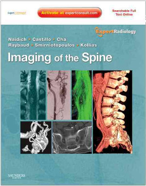 Imaging of the Spine
