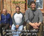 Why Do We Have Widsom Teeth?