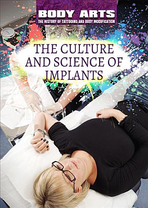 The Culture and Science of Implants PDF