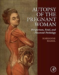 Autopsy of the Pregnant Woman