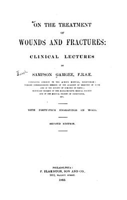 On the Treatment of Wounds and Fractures PDF