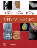 Medical Imaging - E-Book