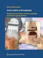 Total Ankle Arthroplasty
