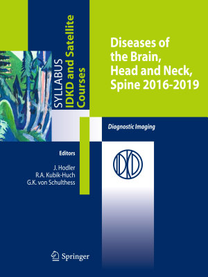 Diseases of the Brain  Head and Neck  Spine 2016 2019 PDF