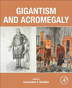 Gigantism and Acromegaly